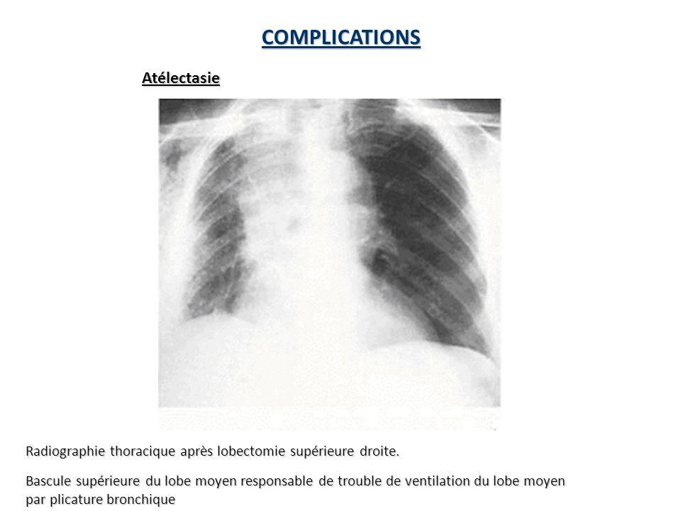 Radiographie thoracique après lobectomie supérieure droite.