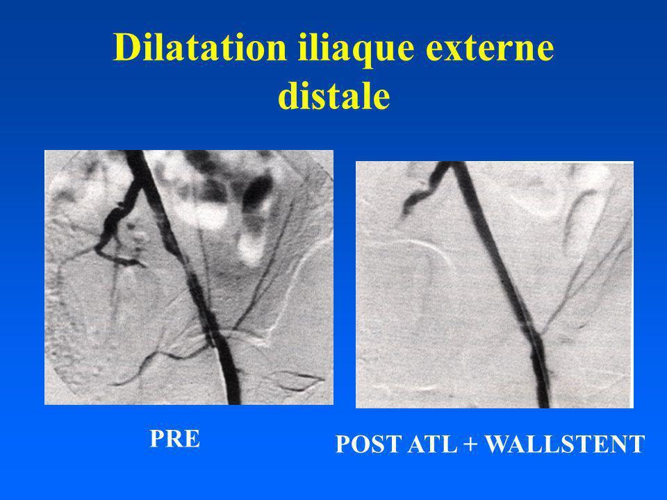 Dilatation iliaque externe distale PRE POST ATL + WALLSTENT