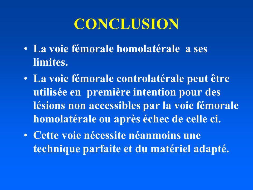 CONCLUSION La voie fémorale homolatérale a ses limites. La voie fémorale controlatérale peut être utilisée en première intention pour des lésions non