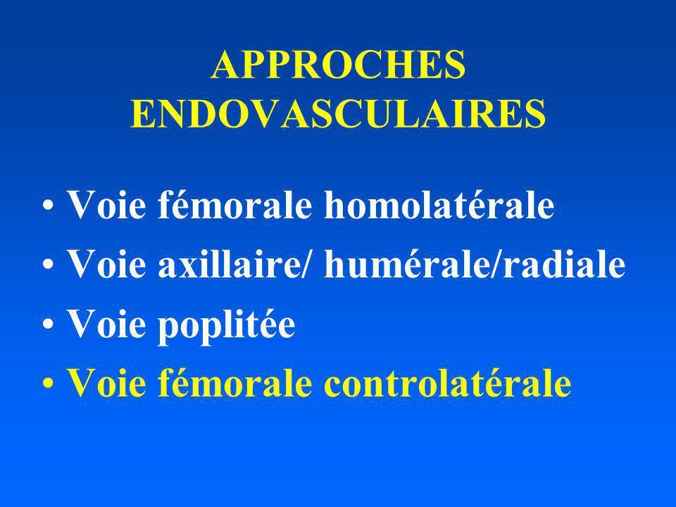APPROCHES ENDOVASCULAIRES Voie fémorale homolatérale Voie axillaire/ humérale/radiale Voie poplitée Voie fémorale controlatérale