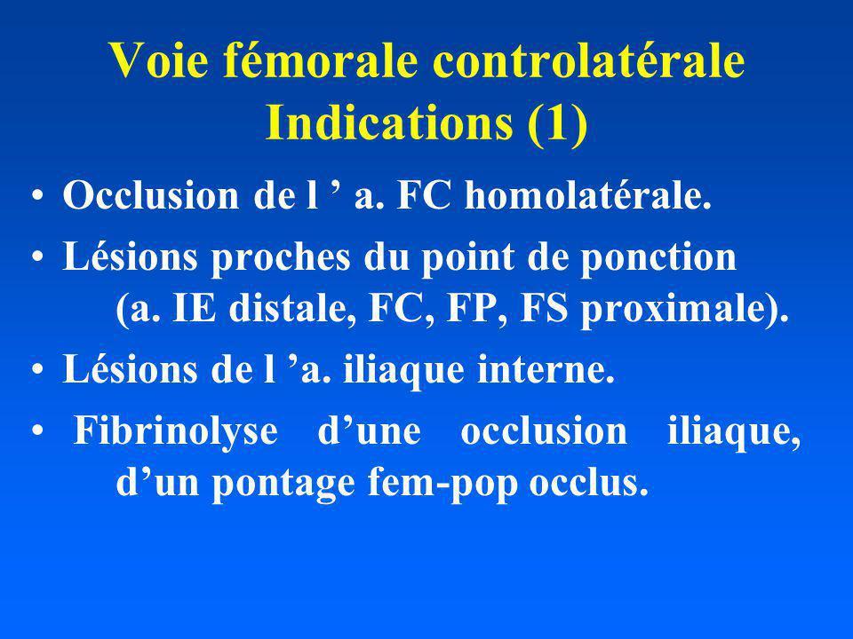 Voie fémorale controlatérale Indications (1) Occlusion de l a. FC homolatérale. Lésions proches du point de ponction (a. IE distale, FC, FP, FS proxim