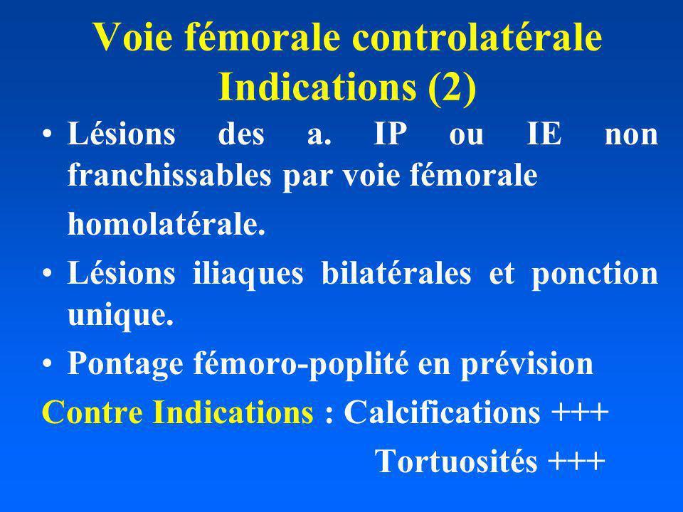 Voie fémorale controlatérale Indications (2) Lésions des a. IP ou IE non franchissables par voie fémorale homolatérale. Lésions iliaques bilatérales e