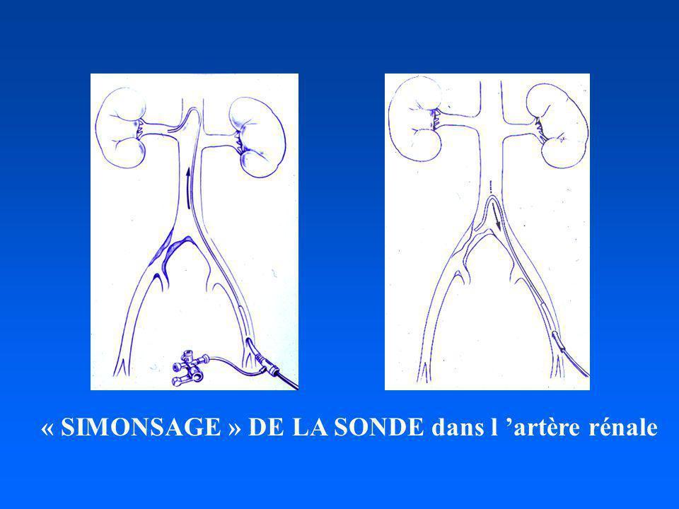 « SIMONSAGE » DE LA SONDE dans l artère rénale