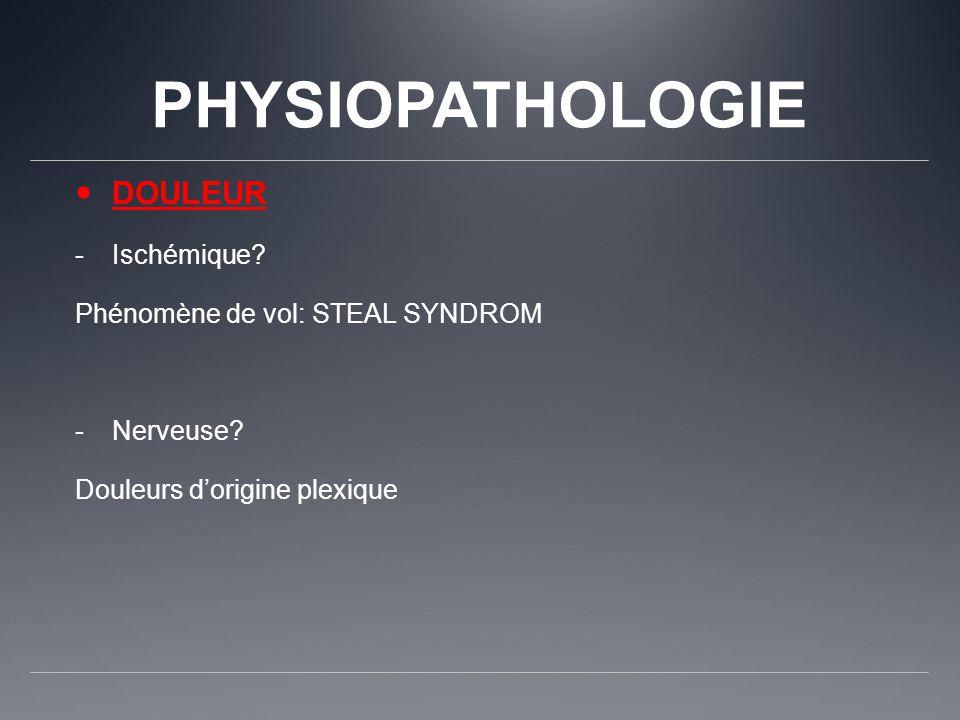 PHYSIOPATHOLOGIE DOULEUR -Ischémique? Phénomène de vol: STEAL SYNDROM -Nerveuse? Douleurs dorigine plexique