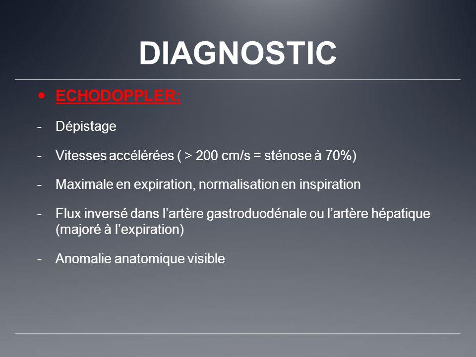 DIAGNOSTIC ECHODOPPLER: -Dépistage -Vitesses accélérées ( > 200 cm/s = sténose à 70%) -Maximale en expiration, normalisation en inspiration -Flux inve