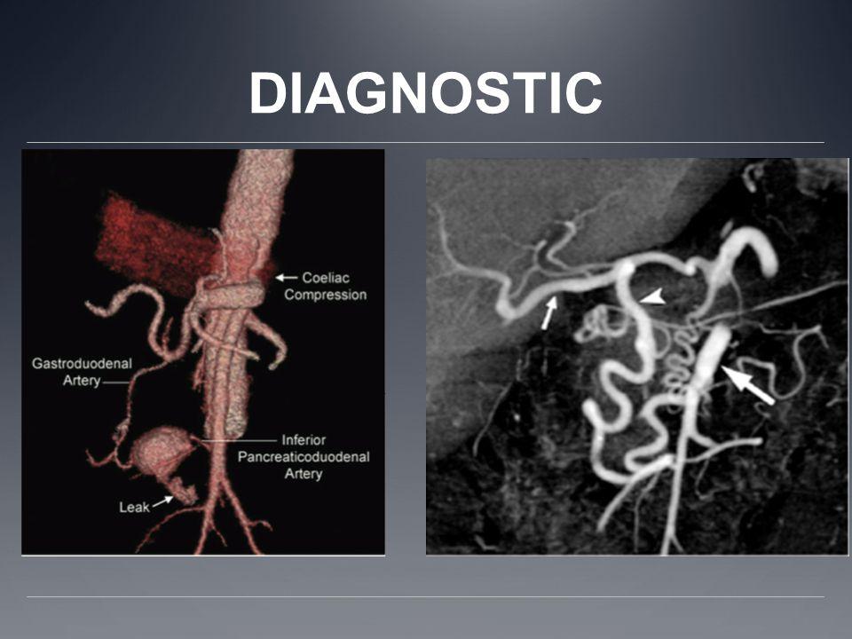 ARTERIOGRAPHIE: - Gold standard - Vue latéro aortique - Avec étude du cycle respiratoire
