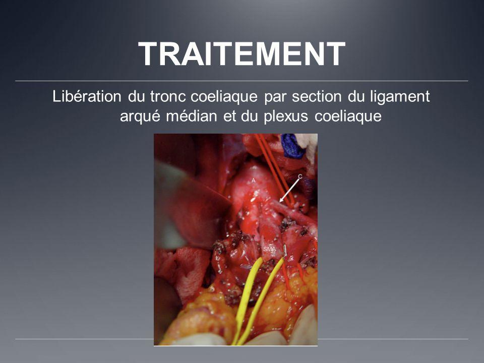 TRAITEMENT Libération du tronc coeliaque par section du ligament arqué médian et du plexus coeliaque