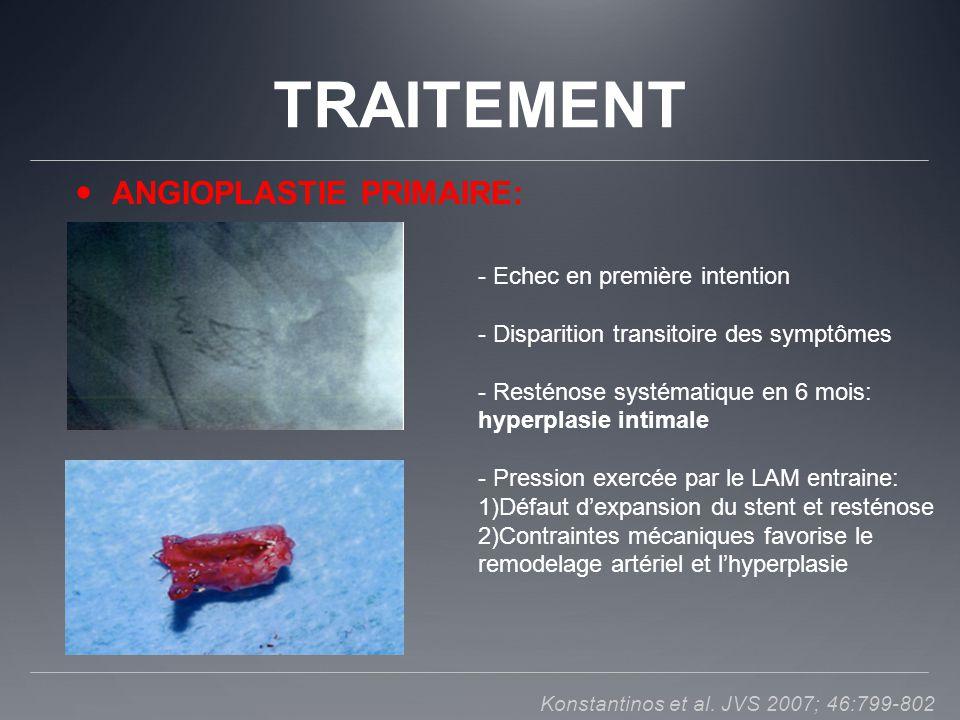 TRAITEMENT ANGIOPLASTIE PRIMAIRE: - Echec en première intention - Disparition transitoire des symptômes - Resténose systématique en 6 mois: hyperplasi