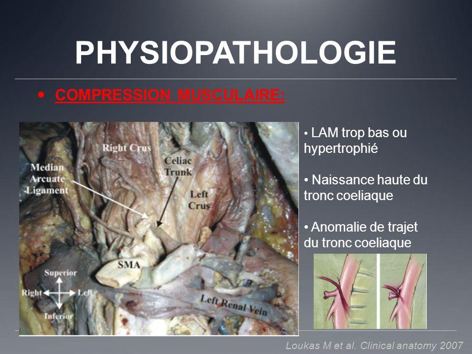 PHYSIOPATHOLOGIE COMPRESSION MUSCULAIRE: LAM trop bas ou hypertrophié Naissance haute du tronc coeliaque Anomalie de trajet du tronc coeliaque Loukas