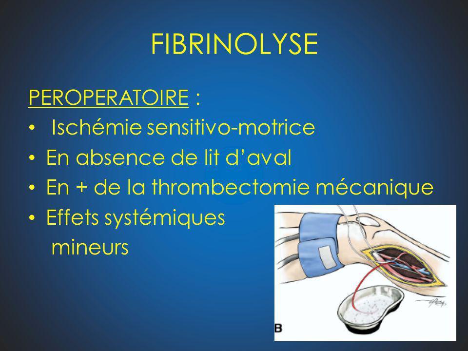 FIBRINOLYSE PEROPERATOIRE : Ischémie sensitivo-motrice En absence de lit daval En + de la thrombectomie mécanique Effets systémiques mineurs