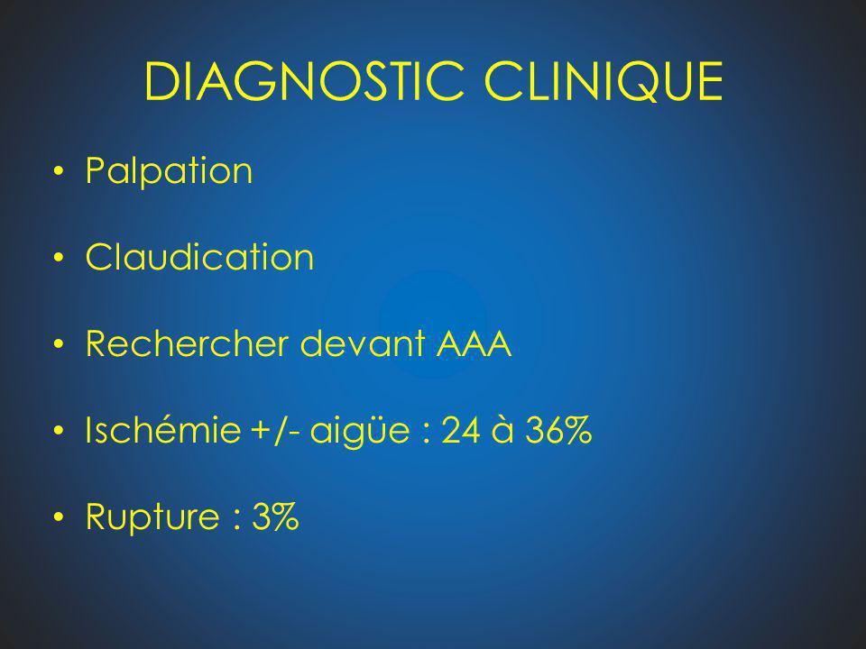 DIAGNOSTIC CLINIQUE Palpation Claudication Rechercher devant AAA Ischémie +/- aigüe : 24 à 36% Rupture : 3%