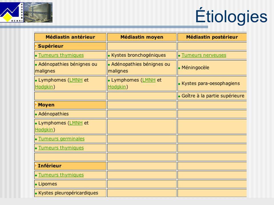 Étiologies