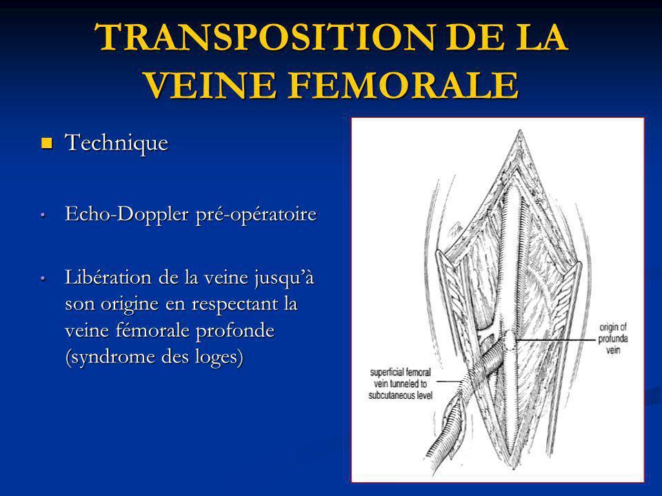 TRANSPOSITION DE LA VEINE FEMORALE Technique Technique Echo-Doppler pré-opératoire Echo-Doppler pré-opératoire Libération de la veine jusquà son origi