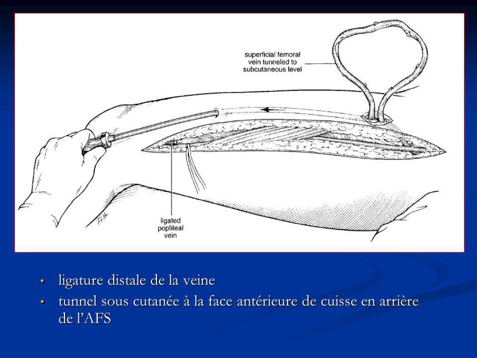 ligature distale de la veine ligature distale de la veine tunnel sous cutanée à la face antérieure de cuisse en arrière de lAFS tunnel sous cutanée à