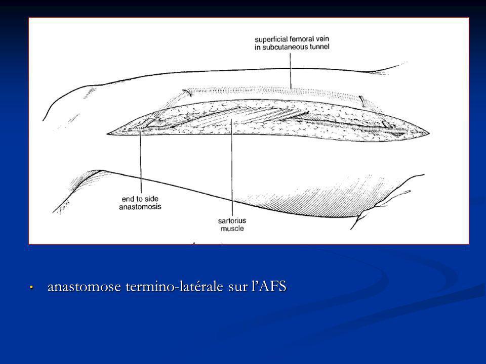 anastomose termino-latérale sur lAFS anastomose termino-latérale sur lAFS