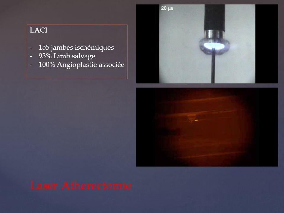 Laser Atherectomie LACI -155 jambes ischémiques -93% Limb salvage -100% Angioplastie associée