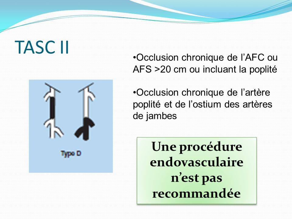 TASC II Occlusion chronique de lAFC ou AFS >20 cm ou incluant la poplité Occlusion chronique de lartère poplité et de lostium des artères de jambes Un