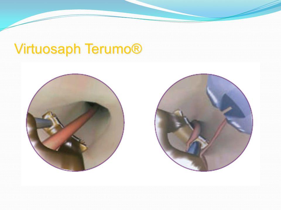 Virtuosaph Terumo®
