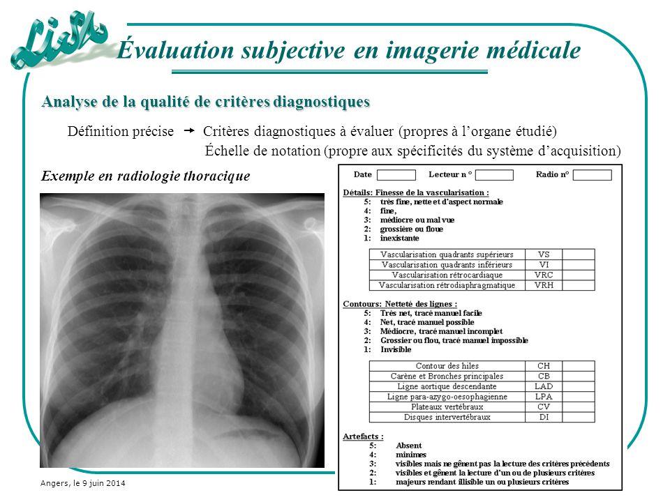 Angers, le 9 juin 2014 Analyse de la qualité de critères diagnostiques Définition précise Critères diagnostiques à évaluer (propres à lorgane étudié)