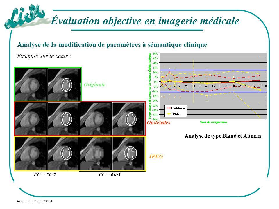 Angers, le 9 juin 2014 Analyse de la modification de paramètres à sémantique clinique Exemple sur le cœur : Analyse de type Bland et Altman Évaluation