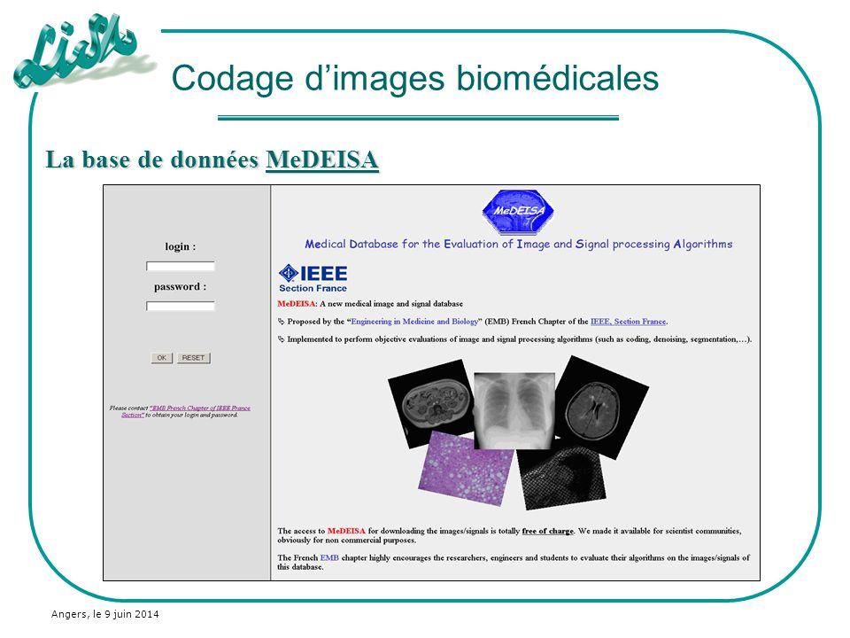 Angers, le 9 juin 2014 La base de données MeDEISA MeDEISA Codage dimages biomédicales