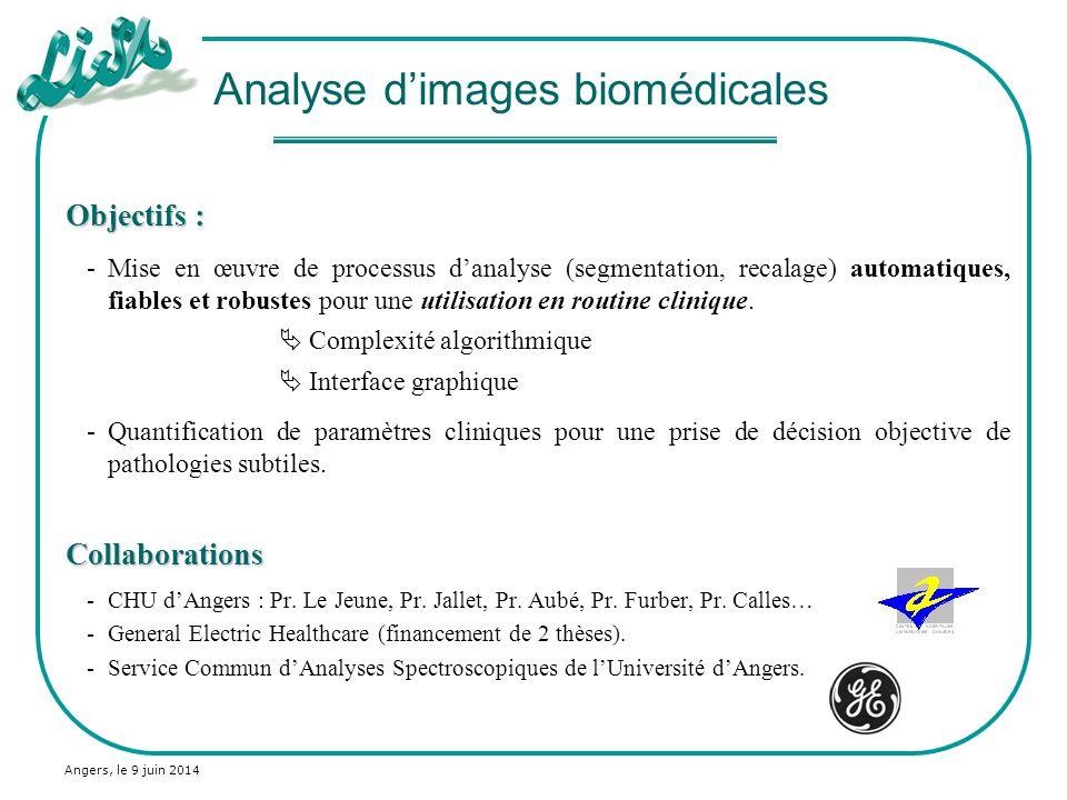 Angers, le 9 juin 2014 Objectifs : -Mise en œuvre de processus danalyse (segmentation, recalage) automatiques, fiables et robustes pour une utilisatio