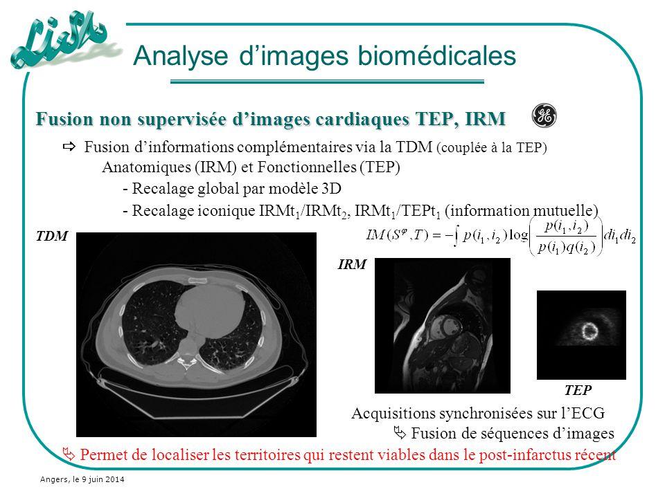 Angers, le 9 juin 2014 Fusion non supervisée dimages cardiaques TEP, IRM Thèse de Xavier Baty Construction dun modèle 3D du cœur IRM et CT Recalage local TEP/IRM Analyse dimages biomédicales Transformation globale