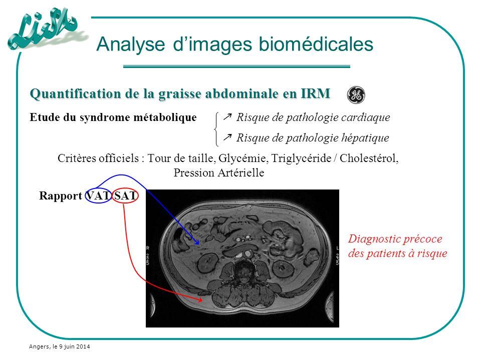 Angers, le 9 juin 2014 Quantification de la graisse abdominale en IRM Segmentation automatique par classification floue : C-Means généralisé Image originale Classification floue Analyse dimages biomédicales
