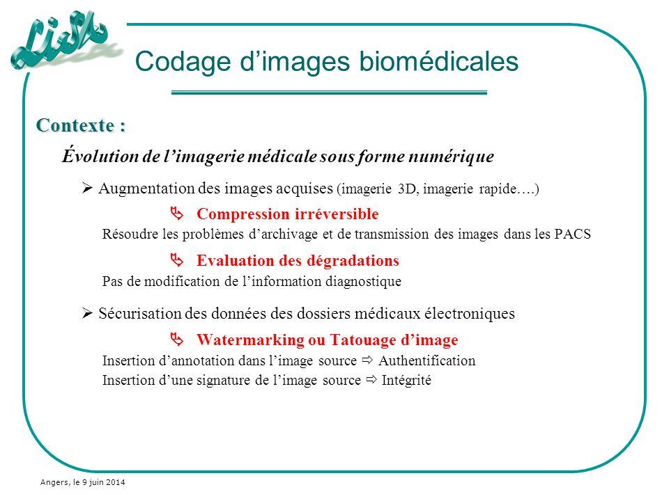 Angers, le 9 juin 2014 Application des normes de compression en imagerie médicale : IRM cardiaque : 256*256*8 bits (zoom) Image originale JPEG TC=60:1 JPEG2000 TC=60:1 IRM abdomen : 512*512*16 bits (zoom) Image originale JPEG2000 TC=10:1 JPEG2000 TC=40:1 Compression dimages médicales