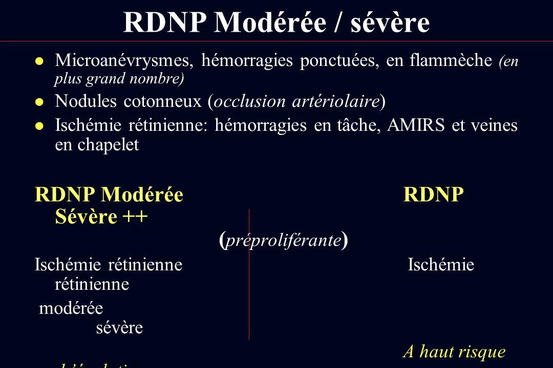 RDNP Modérée / sévère l Microanévrysmes, hémorragies ponctuées, en flammèche (en plus grand nombre) l Nodules cotonneux (occlusion artériolaire) l Isc
