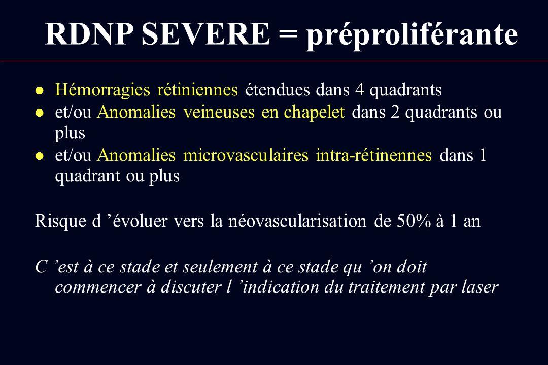 RDNP SEVERE = préproliférante l Hémorragies rétiniennes étendues dans 4 quadrants l et/ou Anomalies veineuses en chapelet dans 2 quadrants ou plus l e