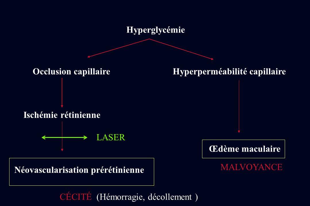 Hyperglycémie Occlusion capillaireHyperperméabilité capillaire Ischémie rétinienne Néovascularisation prérétinienne Œdème maculaire MALVOYANCE CÉCITÉ