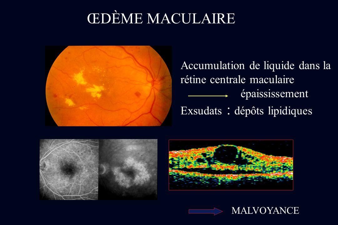 Accumulation de liquide dans la rétine centrale maculaire épaississement Exsudats : dépôts lipidiques ŒDÈME MACULAIRE MALVOYANCE