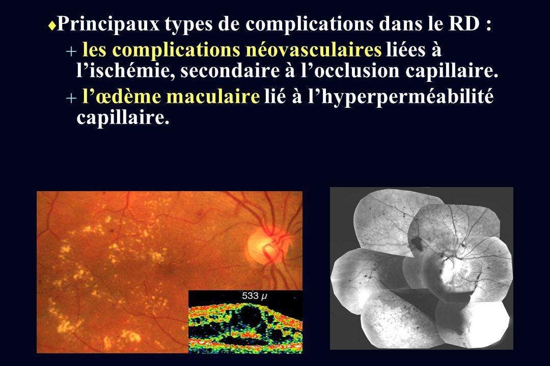 Principaux types de complications dans le RD : les complications néovasculaires liées à lischémie, secondaire à locclusion capillaire. lœdème maculair