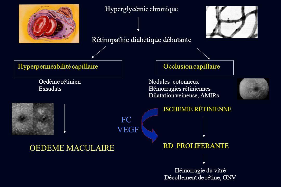 Hyperglycémie chronique Rétinopathie diabétique débutante Hyperperméabilité capillaire Occlusion capillaire Oedème rétinienNodules cotonneux ExsudatsH