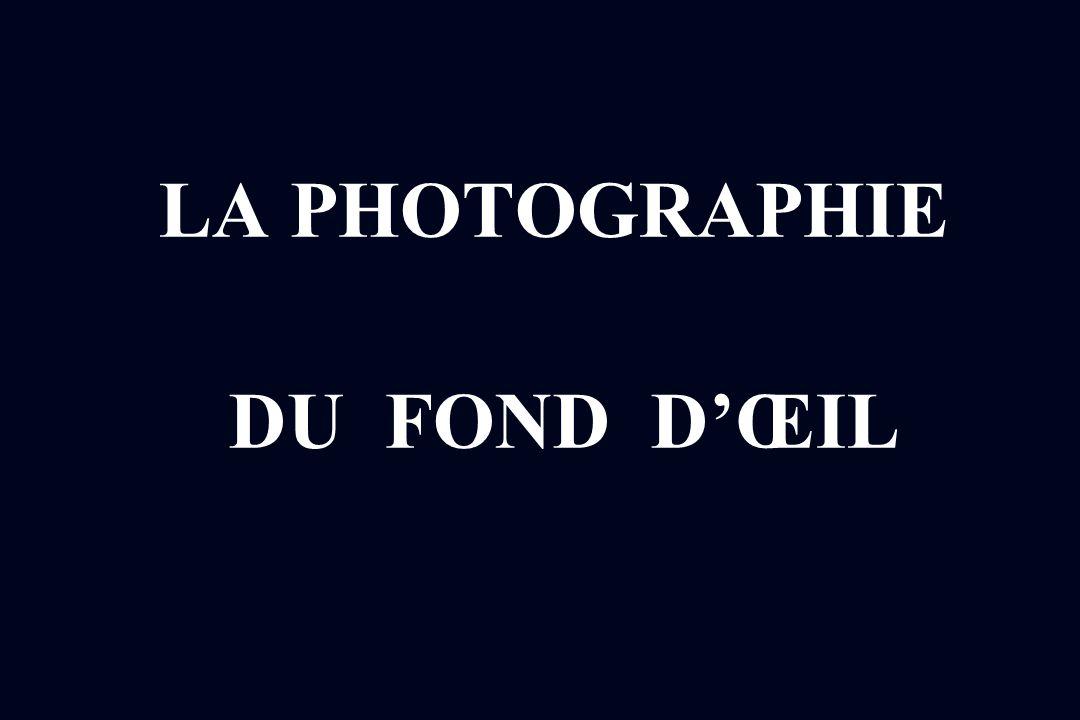 LA PHOTOGRAPHIE DU FOND DŒIL