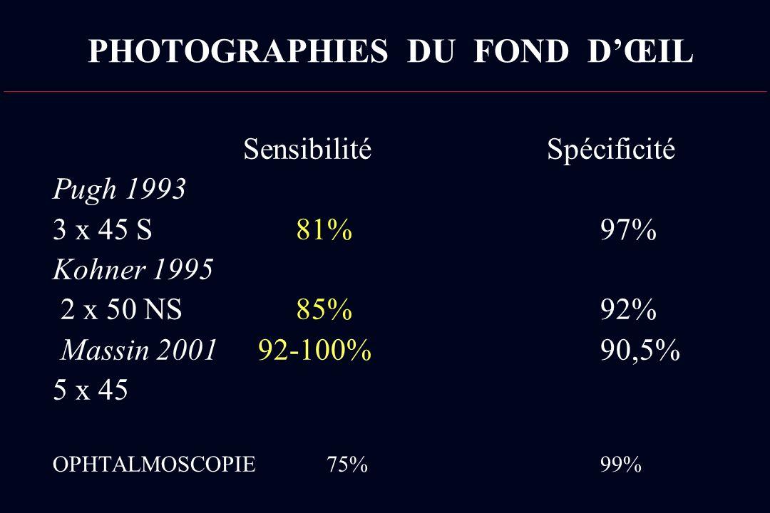 PHOTOGRAPHIES DU FOND DŒIL Sensibilité Spécificité Pugh 1993 3 x 45 S 81%97% Kohner 1995 2 x 50 NS 85%92% Massin 200192-100%90,5% 5 x 45 OPHTALMOSCOPI