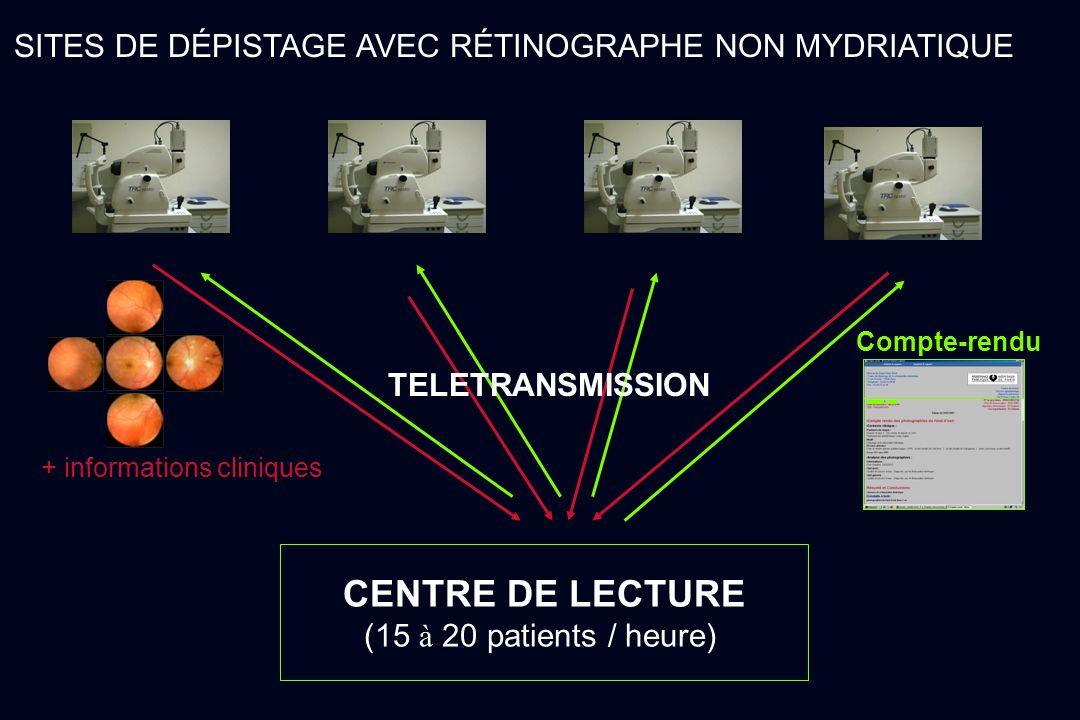 SITES DE DÉPISTAGE AVEC RÉTINOGRAPHE NON MYDRIATIQUE CENTRE DE LECTURE (15 à 20 patients / heure) TELETRANSMISSION + informations cliniques Compte-ren