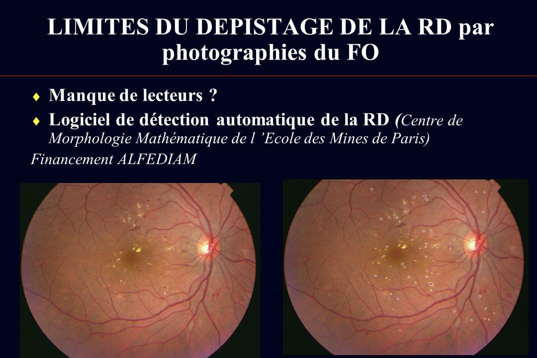 Manque de lecteurs ? Logiciel de détection automatique de la RD ( Centre de Morphologie Mathématique de l Ecole des Mines de Paris) Financement ALFEDI