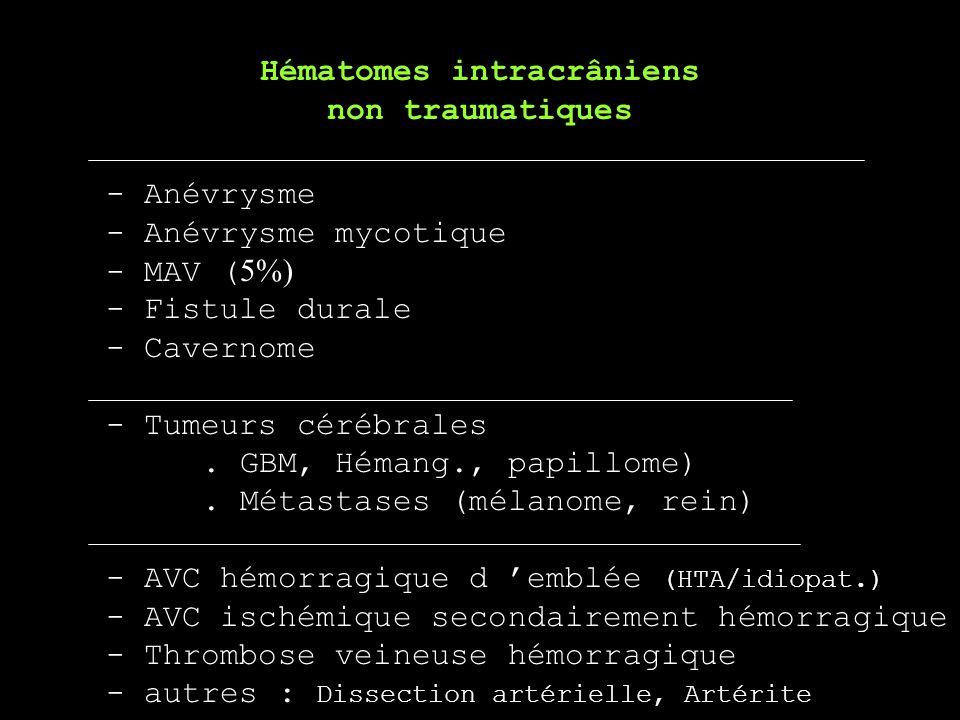 - Anévrysme - Anévrysme mycotique - MAV ( 5%) - Fistule durale - Cavernome - Tumeurs cérébrales. GBM, Hémang., papillome). Métastases (mélanome, rein)