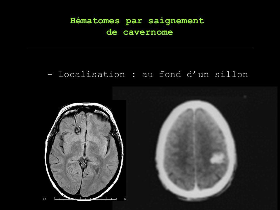 - Localisation : au fond dun sillon Hématomes par saignement de cavernome