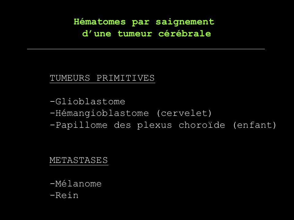 Hématomes par saignement dune tumeur cérébrale TUMEURS PRIMITIVES -Glioblastome -Hémangioblastome (cervelet) -Papillome des plexus choroïde (enfant) M