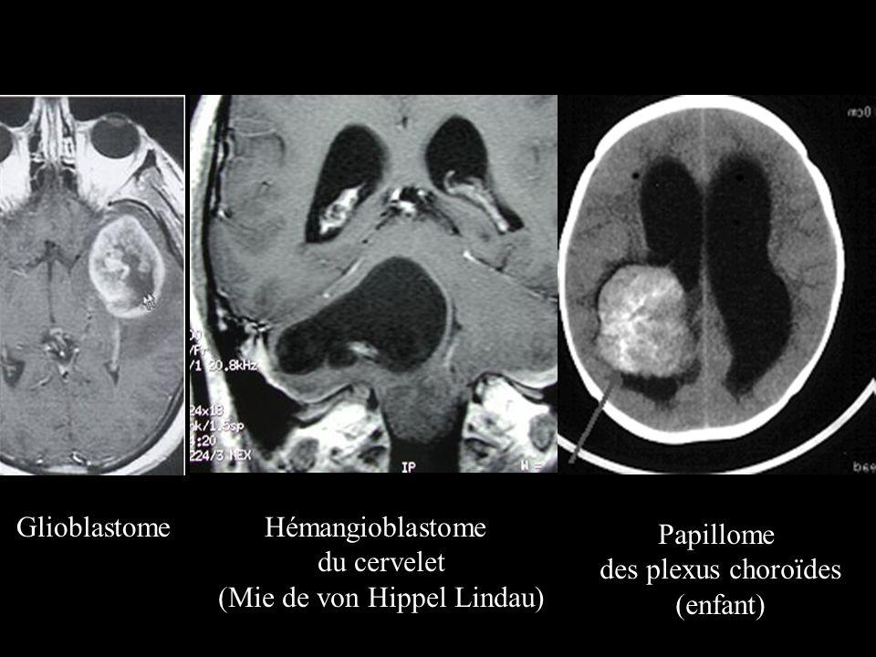 GlioblastomeHémangioblastome du cervelet (Mie de von Hippel Lindau) Papillome des plexus choroïdes (enfant)