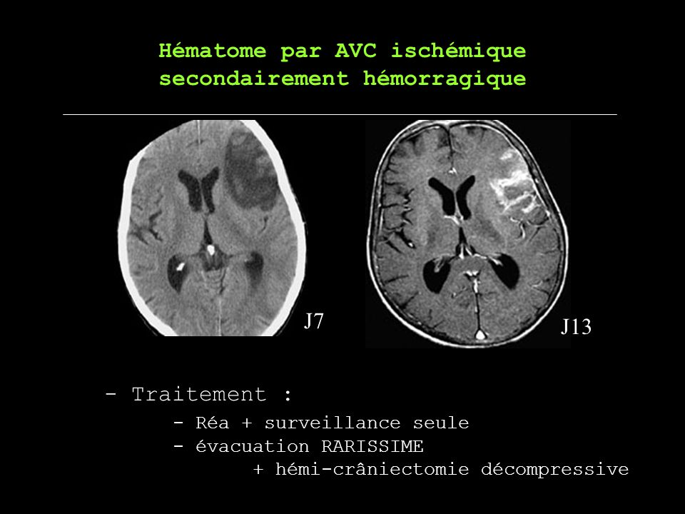 Hématome par AVC ischémique secondairement hémorragique J7 J13 - Traitement : - Réa + surveillance seule - évacuation RARISSIME + hémi-crâniectomie dé