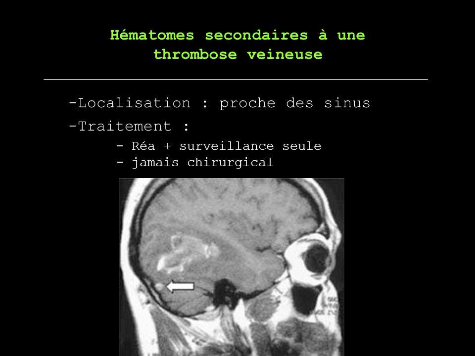 -Localisation : proche des sinus Hématomes secondaires à une thrombose veineuse -Traitement : - Réa + surveillance seule - jamais chirurgical