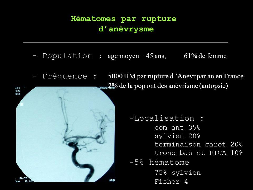 Hématomes par rupture danévrysme -Localisation : com ant 35% sylvien 20% terminaison carot20% tronc bas et PICA10% -5% hématome 75% sylvien Fisher 4 -