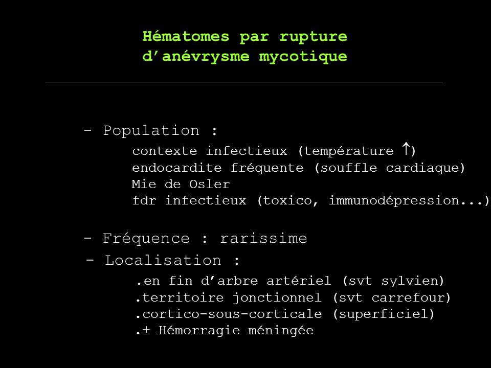 Hématomes par rupture danévrysme mycotique - Population : contexte infectieux (température ) endocardite fréquente (souffle cardiaque) Mie de Osler fd