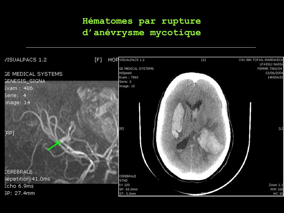 Hématomes par rupture danévrysme mycotique