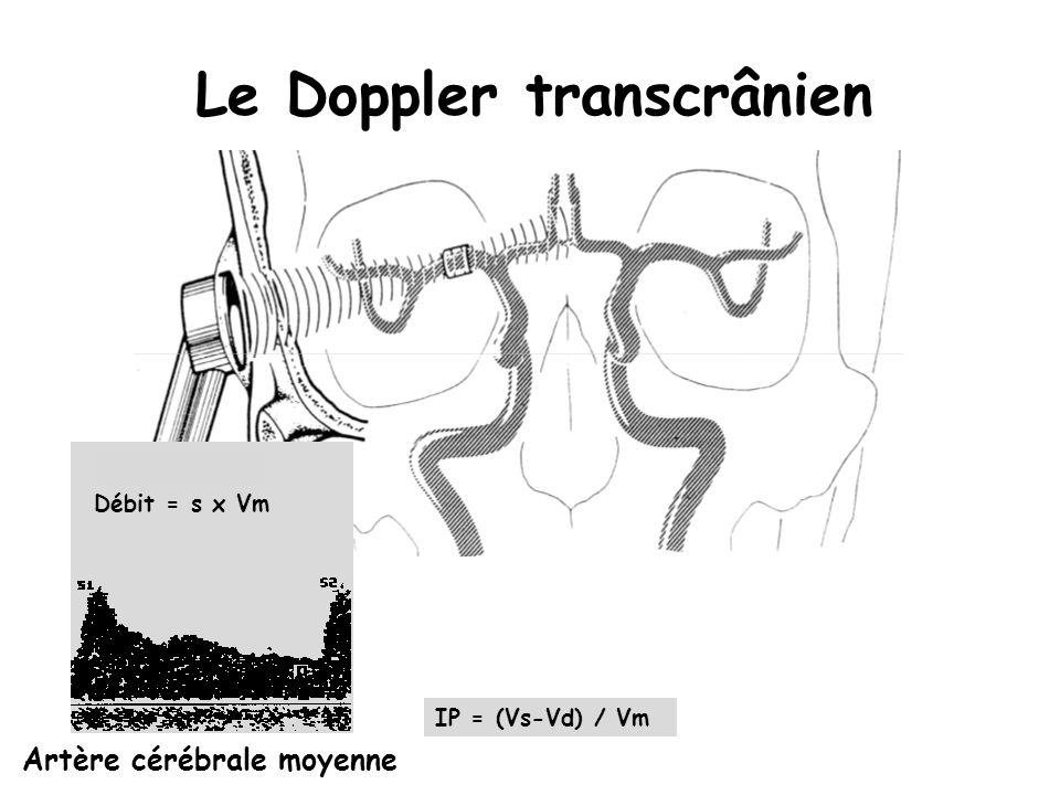 Le Doppler transcrânien Artère cérébrale moyenne IP = (Vs-Vd) / Vm Débit = s x Vm