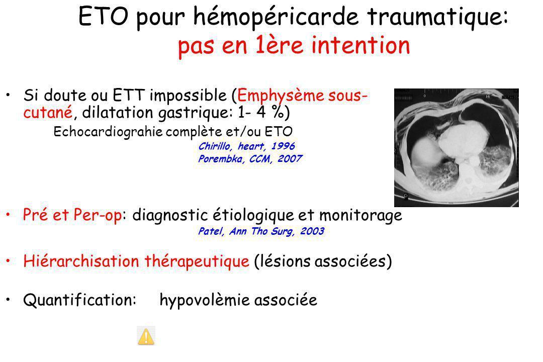 ETO pour hémopéricarde traumatique: pas en 1ère intention Si doute ou ETT impossible (Emphysème sous- cutané, dilatation gastrique: 1- 4 %) Echocardio